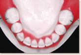 矯正治療後を予測した予測模型 下顎