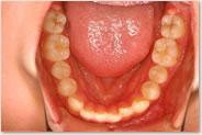 動的治療開始時 下顎