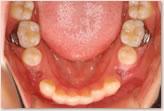 装置装着時(動的治療開始時) 下顎