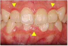 ▲プラークが蓄積して歯肉炎が起きている上下顎前歯