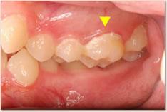 ▲鋏状咬合によりプラークが蓄積している上顎左側6番