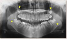 ▲埋伏している第3大臼歯