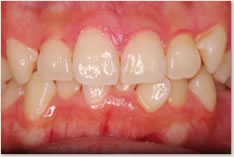 再評価時(初期治療後)の上顎前歯