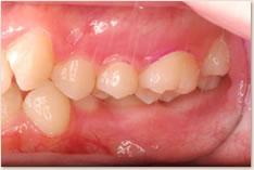 再評価時(初期治療後)の上顎左側6番
