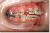 顎間ゴム(クロスエラスティック)装着時:動的治療開始から18ヵ月 右側