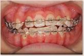 顎間ゴム(クロスエラスティック)装着時:動的治療開始から18ヵ月 正面