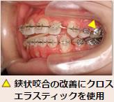 ▲鋏状咬合の改善にクロスエラスティックを使用