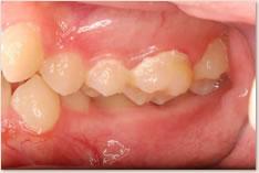 初診時:鋏状咬合(プラークの蓄積が顕著で歯肉炎も起きている)