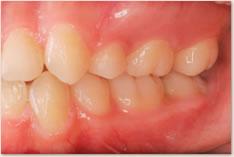 動的治療終了時:正常咬合(プラークの蓄積は認めず歯肉炎も改善している)