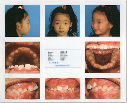 7歳~8歳:前歯のでこぼこ(叢生)