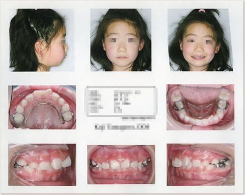 A.歯科医院初診時資料