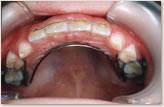 A歯科医院にて(7歳~8歳) 上顎