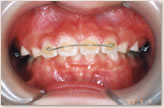 A歯科医院にて(7歳~8歳) 正面
