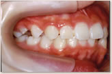 B歯科医院に転医時(8歳~10歳) 右側
