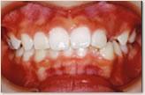 B歯科医院に転医時(8歳~10歳) 正面