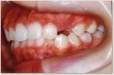 B歯科医院に転医時(8歳~10歳) 左側
