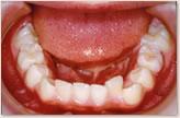 B歯科医院に転医時(8歳~10歳) 下顎
