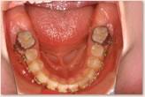 当院転医時(装置装着状態) 下顎