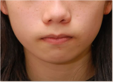 動的治療開始時 14歳 顔貌
