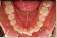 動的治療開始時 14歳 下顎