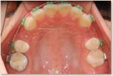 装置装着時(動的治療開始時) 上顎