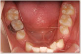 歯の重なりが大きいので上顎から装置を装着