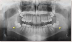 初診時 X線写真所見