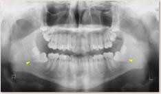 動的治療開始時 X線写真所見