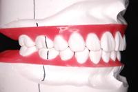 ortho-5-5